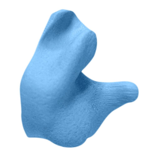 Radian: Custom Molded Earplugs